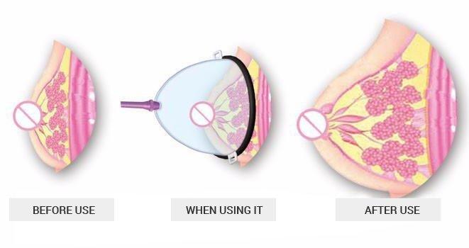 breast enlargement pump before after